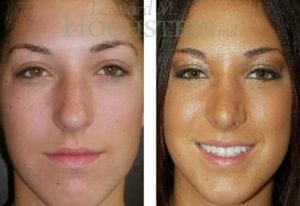 Rhinoplasty Patient 43 before and after facing front.