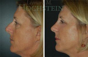 Rhinoplasty Patient 44 before and after facing left.