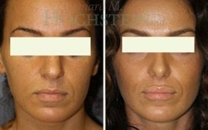 Rhinoplasty Patient 46 before and after facing front.