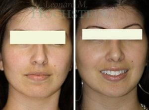 Rhinoplasty Patient 47 before and after facing front.