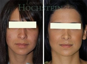 Rhinoplasty Patient 48 before and after facing front.