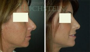 Rhinoplasty Patient 49 before and after facing right.