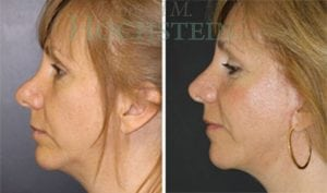 Rhinoplasty Patient 50 before and after facing left.