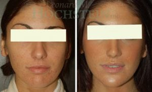 Rhinoplasty Patient 51 before and after facing front.