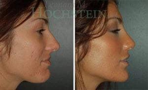 Rhinoplasty Patient 51 before and after facing right.