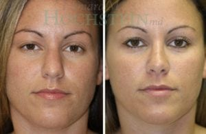 Rhinoplasty Patient 52 before and after facing front.