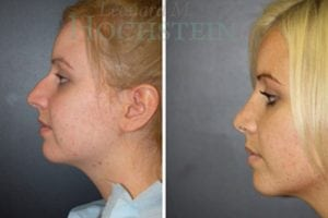 Rhinoplasty Patient 53 before and after facing left.