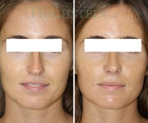 Rhinoplasty Patient 54 before and after facing front.