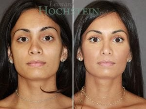 Rhinoplasty Patient 58 before and after facing front.