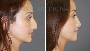 Rhinoplasty Patient 57 before and after facing right.