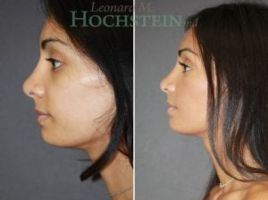 Rhinoplasty Patient 58 before and after facing left.