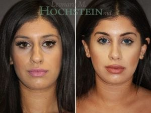 Rhinoplasty Patient 59 before and after facing front.