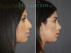 Rhinoplasty Patient 59 before and after facing right.