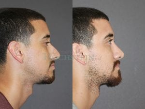 Rhinoplasty Patient 60 before and after facing right.