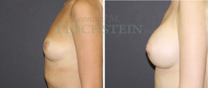 Breast Augmentation Patient 239 before and after facing left.