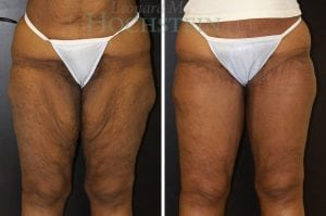 Thigh Lift Patient 01 before and after facing front.