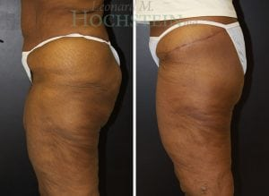 Thigh Lift Patient 01 before and after facing left.