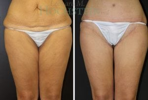 Thigh Lift Patient 02 before and after facing front.