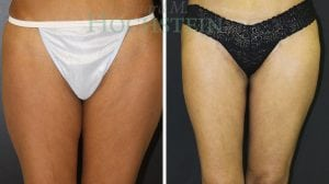 Thigh Lift Patient 03 before and after facing front.