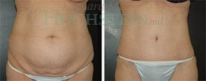 Tummy Tuck Patient 26 before and after front.