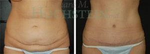 Tummy Tuck Patient 27 before and after front.