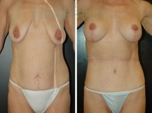 Tummy Tuck Patient 36 before and after front.