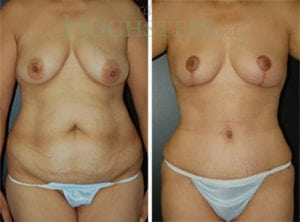 Tummy Tuck Patient 42 before and after front.