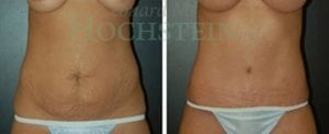 Tummy Tuck Patient 47 before and after front.