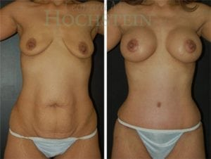 Tummy Tuck Patient 49 before and after front.