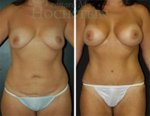 Tummy Tuck Patient 54 before and after forward.