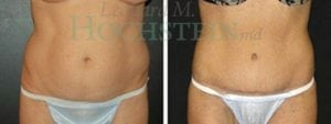 Tummy Tuck Patient 57 before and after front.