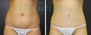Tummy Tuck Patient 62 before and after front.