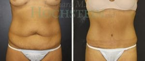 Tummy Tuck Patient 63 before and after front.