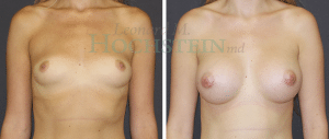 Breast Augmentation Patient 239 before and after facing forward.